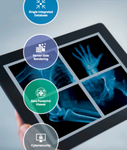 A tablet displays 4 patient X-rays. Having this critical patient information so conveniently available is one of the advantages of digital radiography and PACS systems.