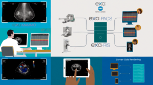 A flow chart and graphic show how digital radiography and PACS work together to to provide critical patient data and high-quality X-ray scans to various workstations.